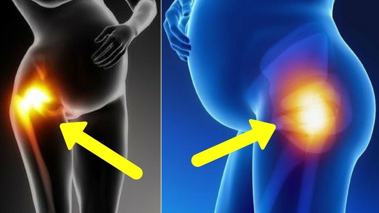 5 Facts To Know About Hip Pain And Pregnancy - Youtube-9701