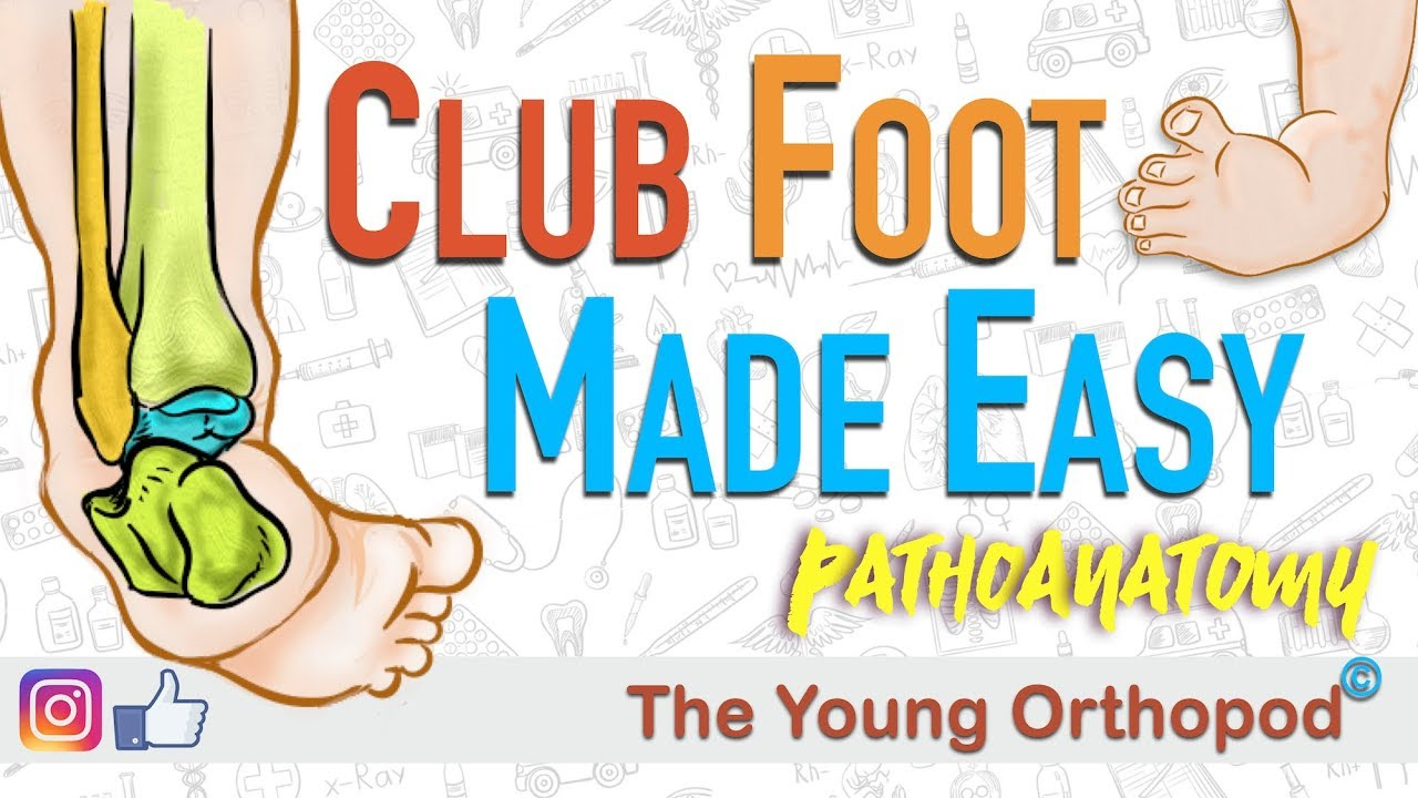 Club Foot Pathoanatomy Made Easy The Young Orthopod Youtube