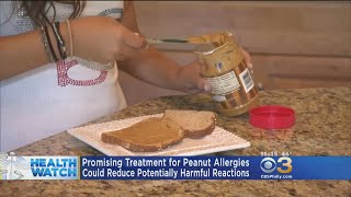 Promising Treatment For Peanut Allergies Awaits FDA Review
