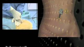 Prise en charge des kystes de l'ovaire coelioscopie cours. managment of ovarian cyst laparoscopy