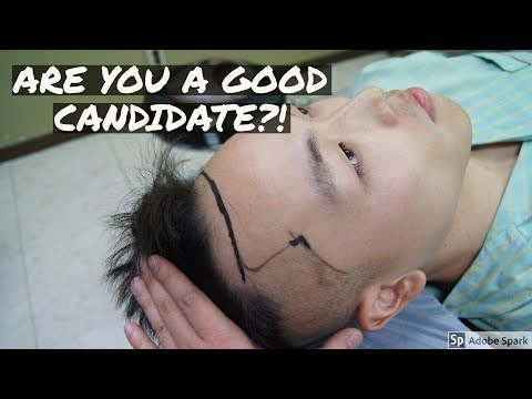 5 Signs You're a Good Hair Transplant Candidate