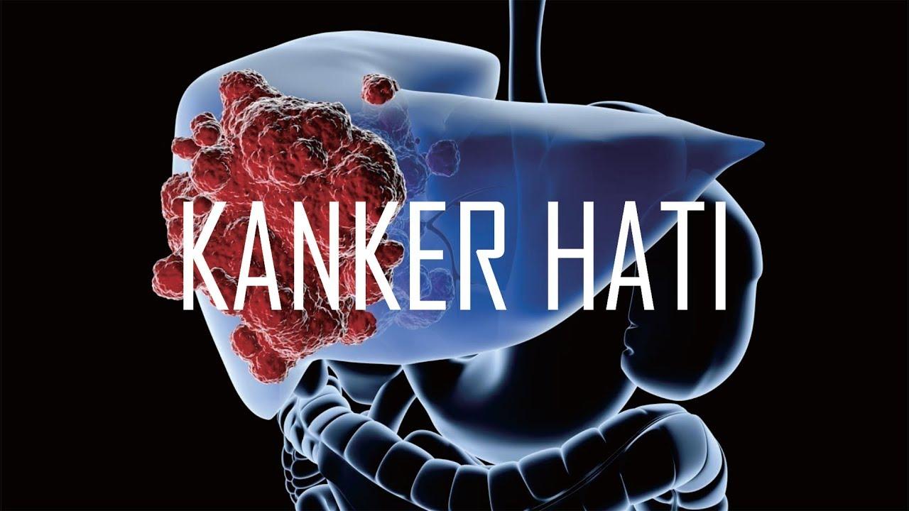 KANKER HATI - YouTube