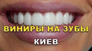 Виниры на зубы Киев (Украина) видео