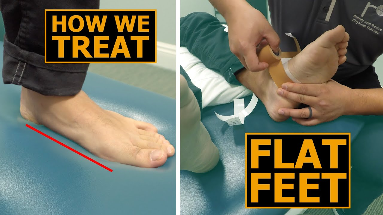 How We Treat Flat Feet   Collapsed
