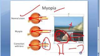 Myopia szemgyakorlatok bates. Új módszer a látás helyreállítására