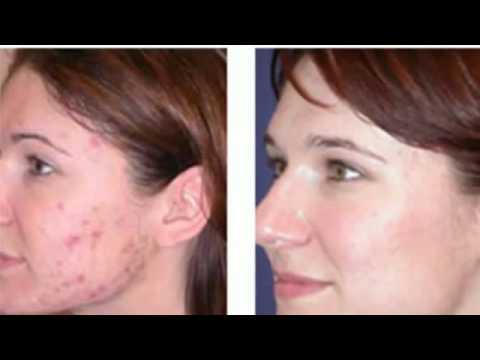 Revitol Acnezine Acne Treatment Review Youtube