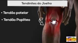 Do joelho em a abaixo após dor queda queimação
