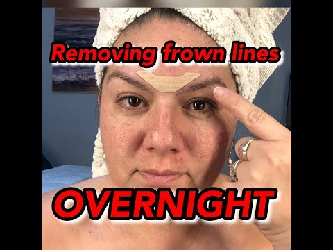 Removing Forehead Wrinkles Overnight