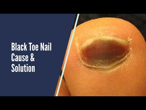 BLACK TOE NAILS CAUSES AND SOLUTIONS