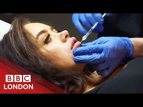 Plastic Surgery Gone Wrong: 'My Lip Was About To Fall Off' - BBC London