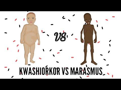 Wn Kwashiorkor