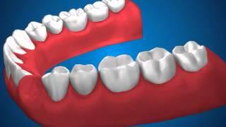 Ортопедическая стоматология  Мостовидные протезы(, 2013-05-06T08:14:46.000Z)