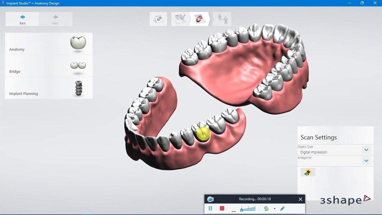 3Shape Implant Studio 2015:Edentulous Case Order, CT Scan Importing ...