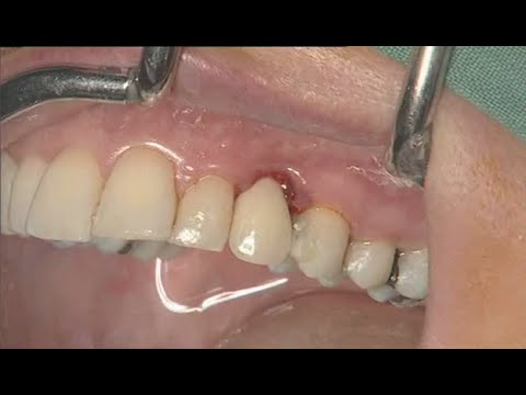 NobelActive clinical case: immediate implant placement - Eric Rompen