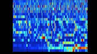 SCHIZOPHRENIA AS SOUND: listening to the dynamic brain