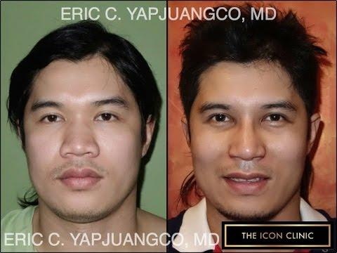 Asian Rhinoplasty The Icon Clinic Youtube