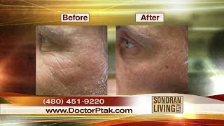 Thermi RF: Dr. Ptak details new procedure to smooth skin