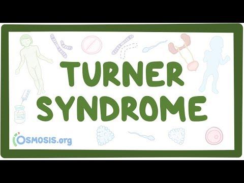 Turner Syndrome - Causes, Symptoms, Diagnosis, Treatment, Pathology