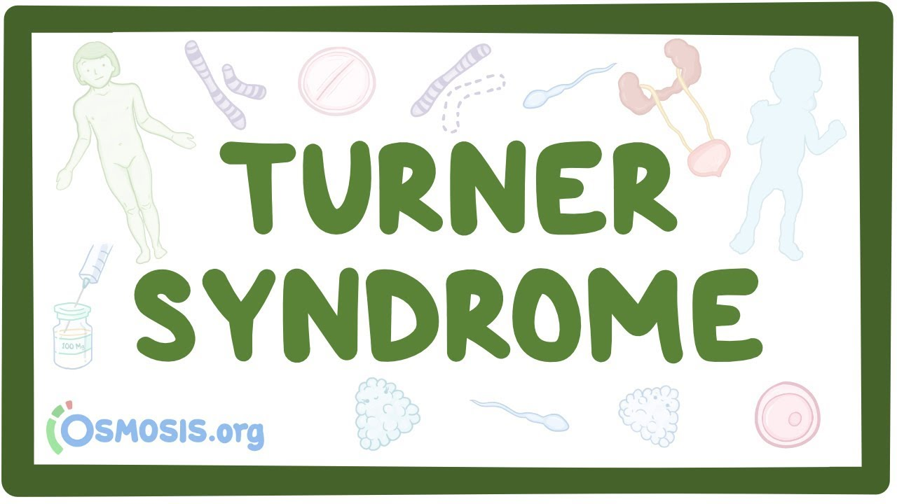 Turner syndrome – causes, symptoms, diagnosis, treatment, pathology