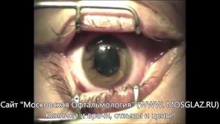 Лазерная коррекция дальнозоркости (гиперметропии) - видео операции(Видео операции лазерной коррекции зрения при дальнозоркости (гиперметропии) методом ЛАСИК (LASIK). Подробнее..., 2016-02-19T15:21:11.000Z)