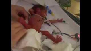 O primeiro banho do bebê com 660 gramas