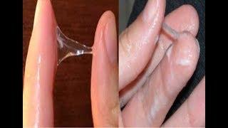 Điều Cần Biết Về Dịch Âm Đạo Ở Nữ Giới | Viêm nấm âm đạo hay Viêm nhiễm phụ khoa nhu the nao