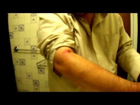 Чем лечить абсцесс от укола абсцесс о укола лечение