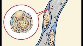 Diese 5 Nahrungsmittel reinigen deine Arterien
