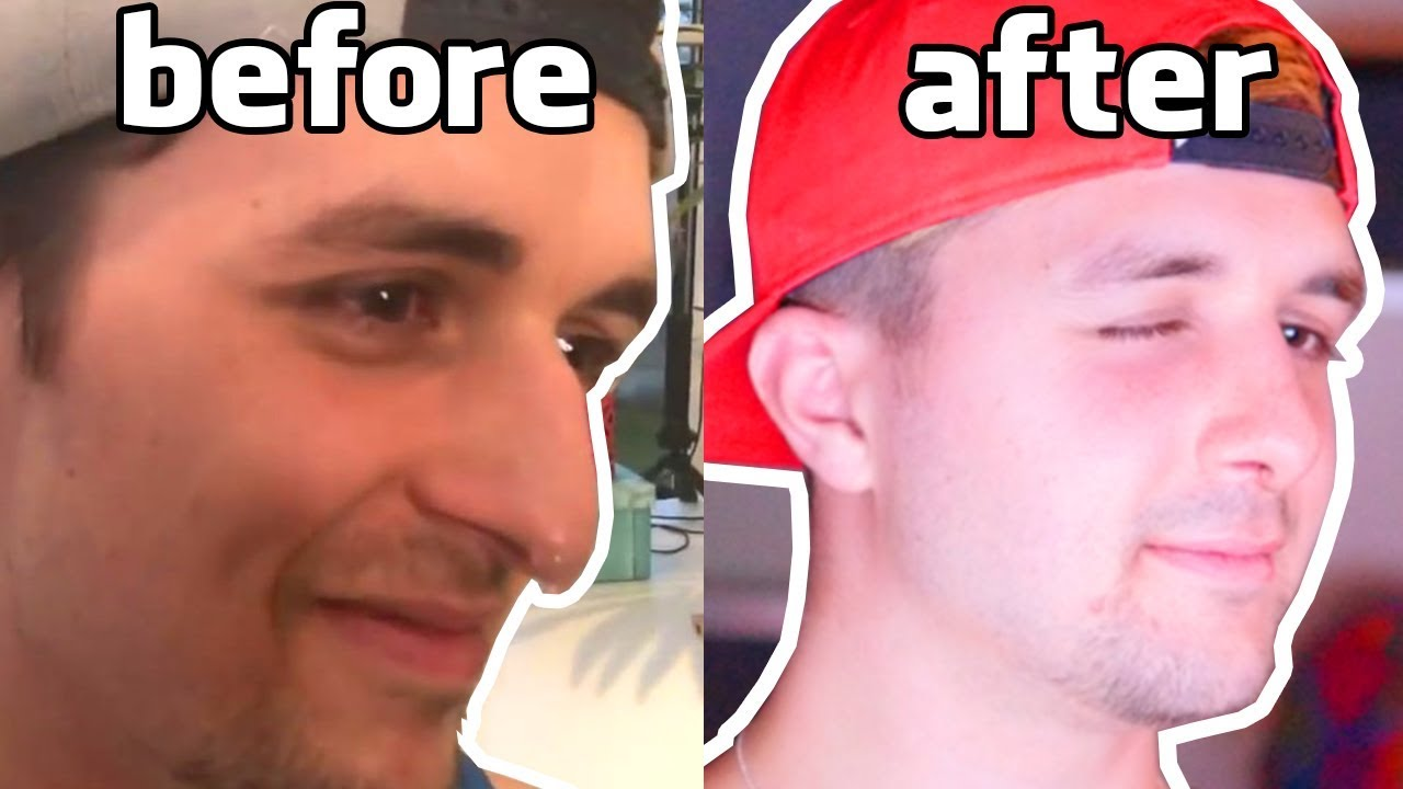 I had a nose job... and MAYBE you should too!