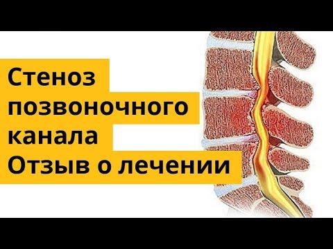 Лечение протрузии диска » spine .com
