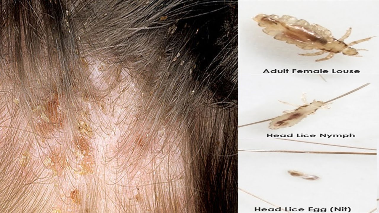 How to get rid of Head Lice Permanently | How to Heal Head ...