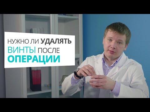 Нужно ли удалять винты после операции по удалению косточки доктор Алексей Олейник #footclinic