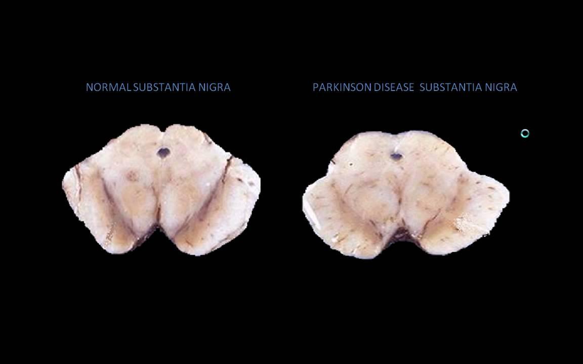 Parkinson Disease Pathophysiology Animation - YouTube