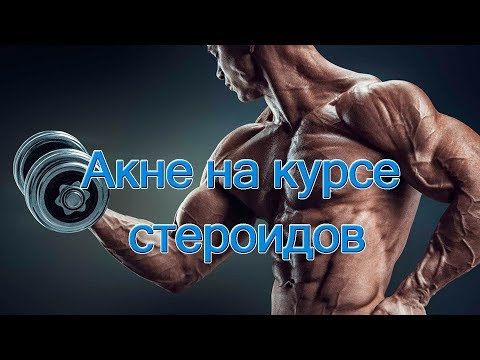Акне на курсе стероидов