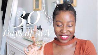 Gambar cover I Tried a DIY Apple Cider Vinegar Toner for 30 Days @itsLakishaa