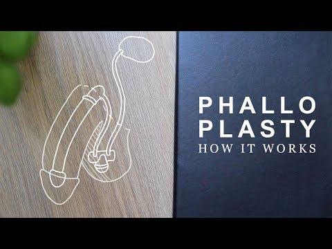 How Phalloplasty Works   FTM Transgender