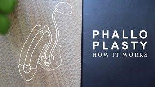 How Phalloplasty Works | FTM Transgender