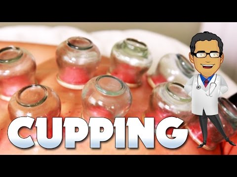 Medical Minute - Cupping in the Olympics (Fire Cupping)