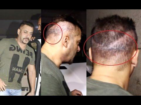 Salman Khan Suffering From Painful Disease!