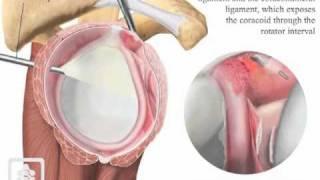 Arthroscopic capsular release for frozen shoulder.mov