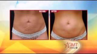 Liposonix, Thermage Skin Tightening, Smartlipo Thumbnail