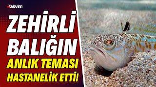Zehirli balığın anlık teması hastanelik etti! \