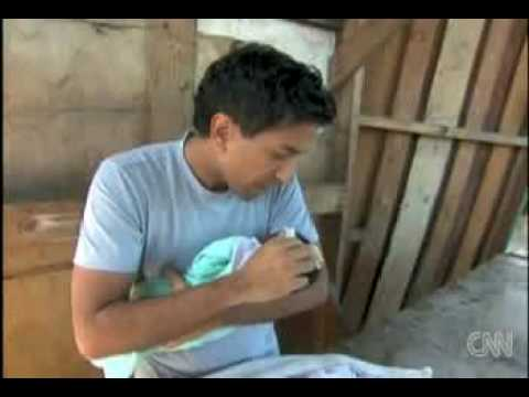 Sanjay Gupta treating 15-day old baby after earthquake in Haiti.mpg