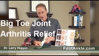 Arthritis of the Big Toe Joint (Hallux Rigidus) - Treatment Ideas from Podiatrist Larry Huppin