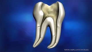 видео О зубах, о стоматологии (ч. 4 лечение корневых каналов)