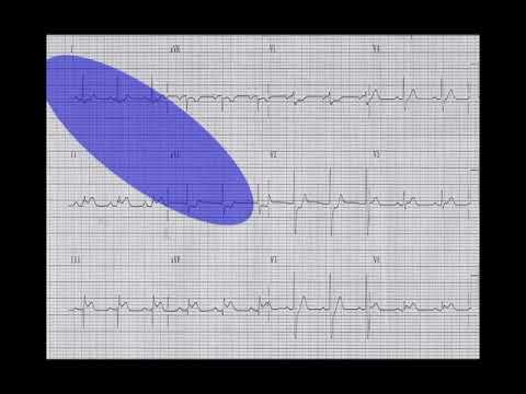Emergency Medicine CME & Pearls of EKG Interpretation/ ECG Interpretation