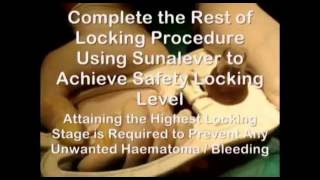 Adult Disposable Circumcision Device by Circumtech Part 2