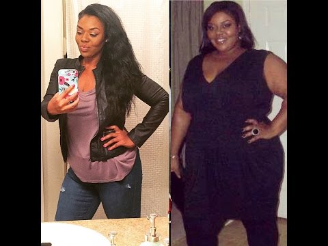 What your doctor didn't tell you. What to expect after Weight loss Surgery