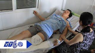 Làm rõ vụ bệnh nhân bị cưa chân oan | VTC