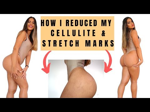 Cellulite and Stretch marks : my tips and tricks